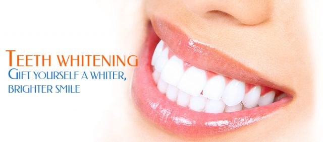 teeth-whiting-