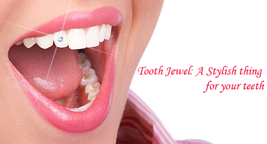 toothjewel